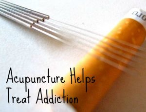 acupuncture-helps treat addiction