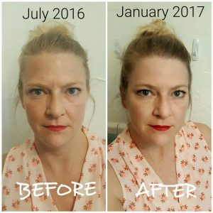 facial rejuvenation acupuncture okc